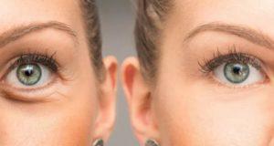 Kosmetik Berkandungan ini Bantu Hilangkan Hitam di Sekitar Mata